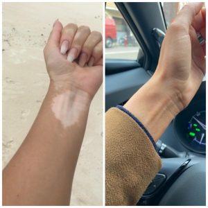Gebruik van zelfbruiner Marc Inbane Natural Tanning Spray op een vitiligo huid